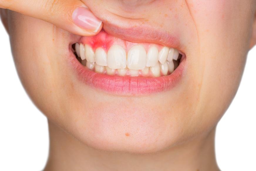 Afbeelding met persoon, tandenborstel, tanden, dragen Automatisch gegenereerde beschrijving